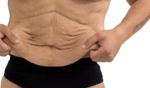 the loose abdomen of a man